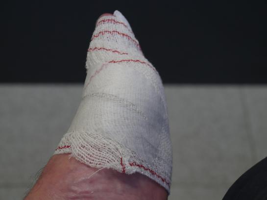 Bandages wrap my foot after considerable care from two Spanish nurses in Estella, Spain.